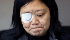 Eye blinded covering HK protests: Indonesian reporter