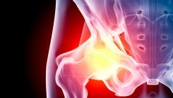 Fungal Infection Hip treated at KMC Hospital